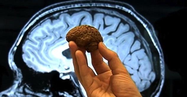 Mini cerebro
